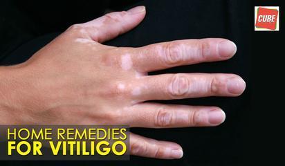 Home Remedies For Vitiligo | Health Tips