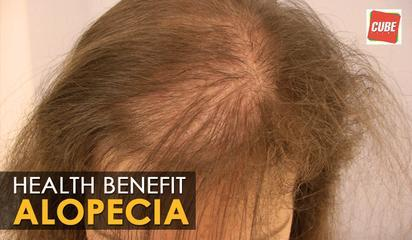 Alopecia Areata - Home Remedies | Health Tips