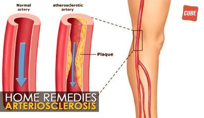 Arteriosclerosis Treatment - Home Remedies | Health Tips