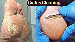 Callus Removing And Cleaning Pedicure Tutorial - A Complete Foot Pedicure Guide