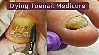 Pedicure Tutorial Dying Toenails Medicure By Professional Pedicurists