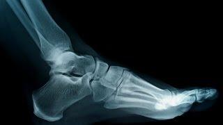 How To Know If You Have Flat Feet | Foot Care