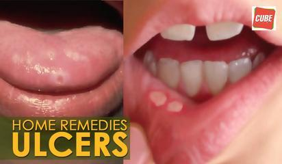 Ulcers Treatment - Home Remedies | Health Tips