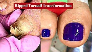 Ripped Toenail Transformation - From Gross To Great!