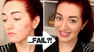 HOW TO: Quickly Cover Acne&Scarring! 5 Minute Makeup Challenge FAIL?!