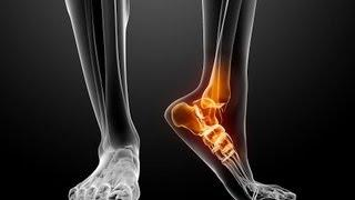 How To Avoid Foot Pain In The Heel | Foot Care